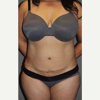45-54 year old woman treated with Tummy Tuck after 3129174