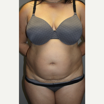 45-54 year old woman treated with Tummy Tuck before 3129174
