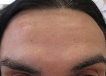 47 year old male treated for forehead wrinkles with Botox after 1245352