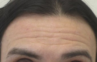 47 year old male treated for forehead wrinkles with Botox before 1245352
