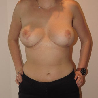 18-24 year old woman treated with Breast Implant Removal after 2832651