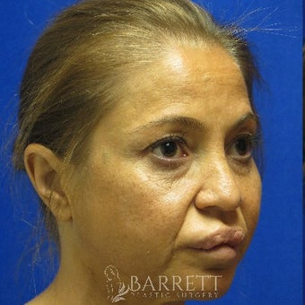 45-54 year old woman treated with Lip Reduction before 1987734
