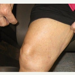 Pre and 3 months post Medial Knee Fat Excision after 2494867