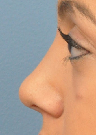 18-24 year old woman treated with Rhinoplasty after 2106926