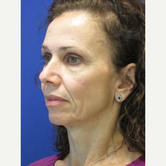 45-54 year old woman treated with Facelift before 3605402
