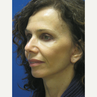 45-54 year old woman treated with Facelift after 3605402