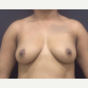 25-34 year old woman treated with Breast Lift with Implants before 3341259