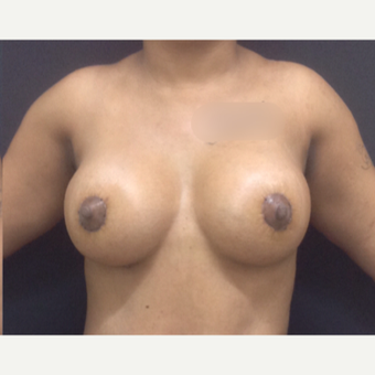 25-34 year old woman treated with Breast Lift with Implants after 3341259