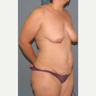 35-44 year old woman treated with Breast Lift before 3454081