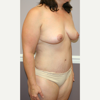 35-44 year old woman treated with Breast Lift after 3454081