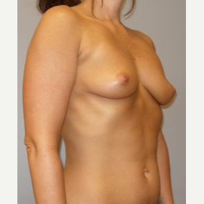 25-34 year old woman treated with Breast Lift with Implants before 3122324