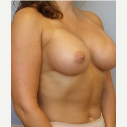 25-34 year old woman treated with Breast Lift with Implants after 3122324