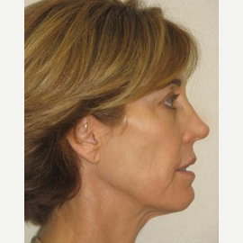 55-64 year old woman treated with Injectable Fillers and Ultherapy Skin Tightening Laser after 3137217
