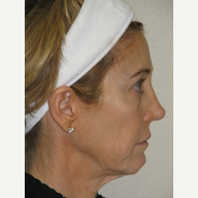 55-64 year old woman treated with Injectable Fillers and Ultherapy Skin Tightening Laser before 3137217