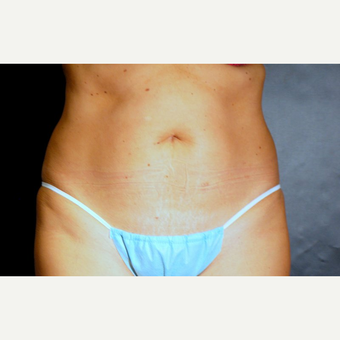 45-54 year old woman treated with Tummy Tuck before 3220342