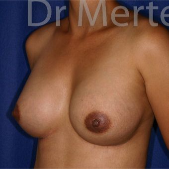35-44 year old woman treated with Breast Augmentation after 3551191