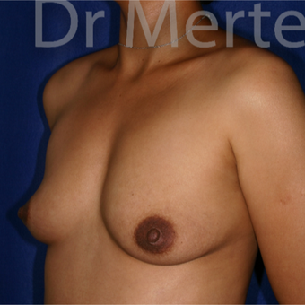 35-44 year old woman treated with Breast Augmentation before 3551191