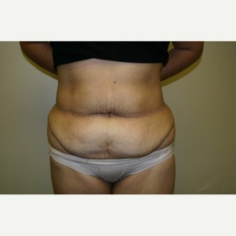 35-44 year old woman treated with Tummy Tuck before 1651051