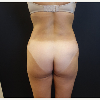 35-44 year old woman treated with Brazilian Butt Lift Revision before 3234464