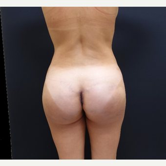 35-44 year old woman treated with Brazilian Butt Lift Revision after 3234464