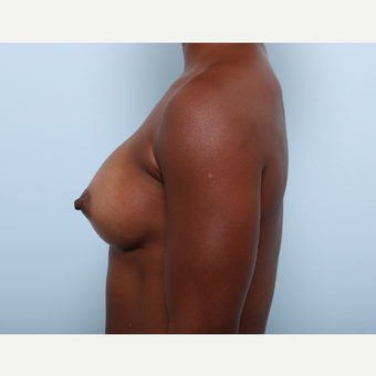 Breast Augmentation after 3345305