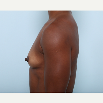Breast Augmentation before 3345305