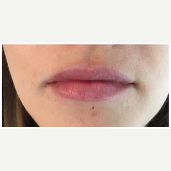 Juvederm Ultra for this 32 year old woman before 3163094