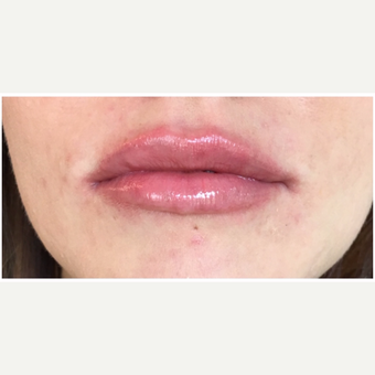 Juvederm Ultra for this 32 year old woman after 3163094