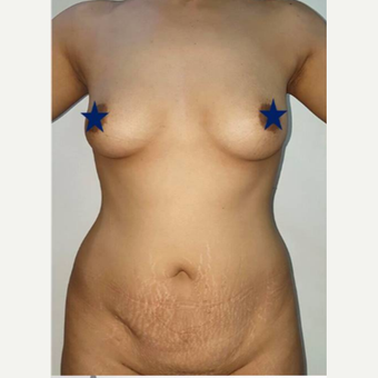 25-34 year old woman treated with Breast Augmentation before 3315060