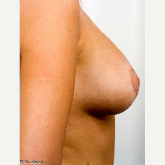 18-24 year old woman treated with Breast Lift after 3037310