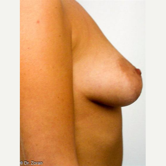 18-24 year old woman treated with Breast Lift before 3037310