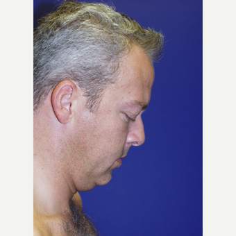 35-44 year old man treated with a Surgical Necklift before 2833982