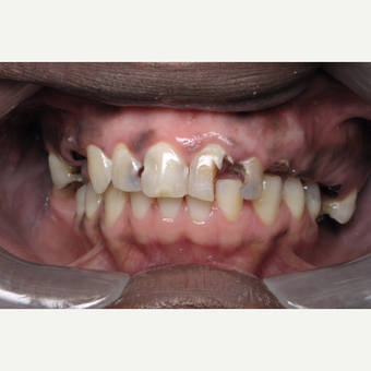 45-54 year old man treated with Dental Implants before 3161993