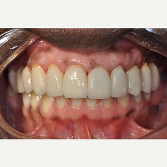 45-54 year old man treated with Dental Implants after 3161993