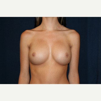 18-24 year old woman treated with Breast Augmentation after 3776213