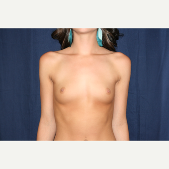 18-24 year old woman treated with Breast Augmentation before 3776213