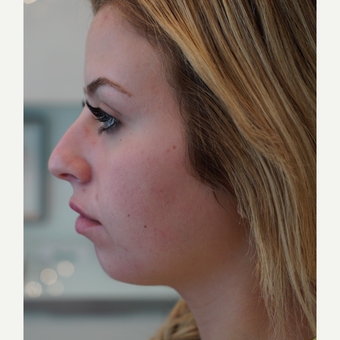 Chin Augmentation with Injectable Fillers before 3292983