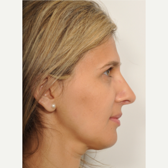 41 year old woman treated with Rhinoplasty after 3246513