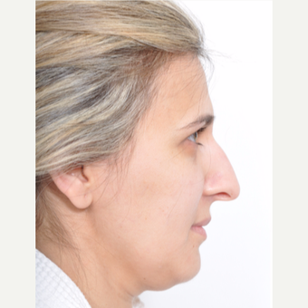 41 year old woman treated with Rhinoplasty before 3246513
