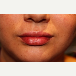 Fuller Lips with Restylane after 2780522