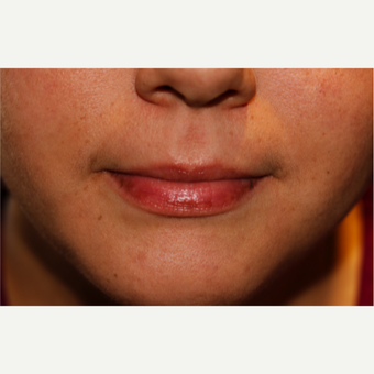 Fuller Lips with Restylane before 2780522