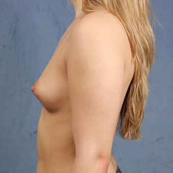 19 year old breast augmentation with silicone gel breast implants and long-term followup. before 3005327