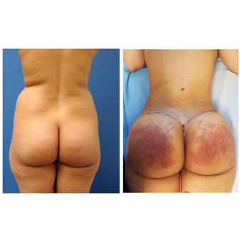 35-44 year old woman treated with Brazilian Butt Lift before 3670792