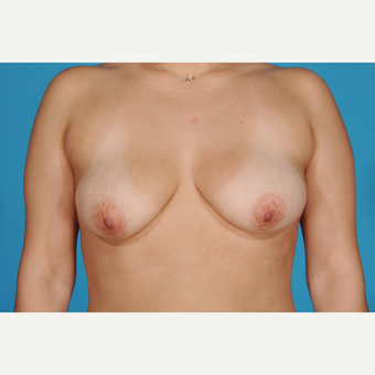 35-44 year old woman treated with Breast Lift with Implants before 3777185