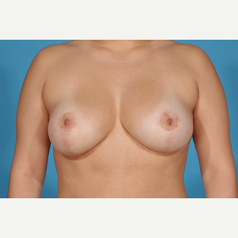 35-44 year old woman treated with Breast Lift with Implants after 3777185