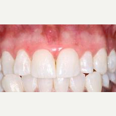 45-54 year old man treated with gum bleaching