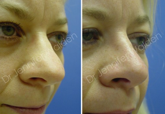 Septorhinoplasty before 1112656