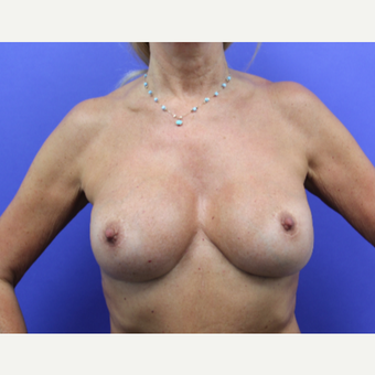 55-64 year old woman treated with Breast Implant Revision after 3327474