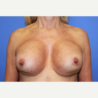 55-64 year old woman treated with Breast Implant Revision before 3327474