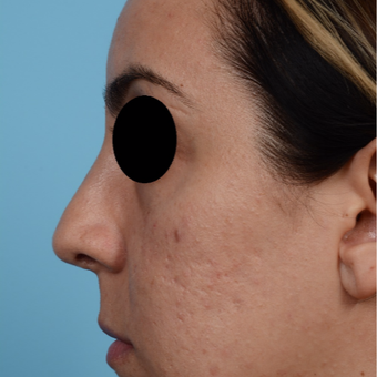 25-34 year old woman treated with Rhinoplasty after 3300075